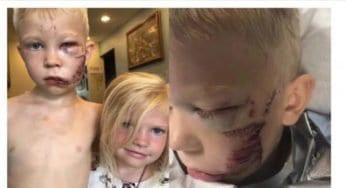 Bridger, il bimbo eroe di 6 anni che ha attirato il cane per salvare la sorellina più piccola