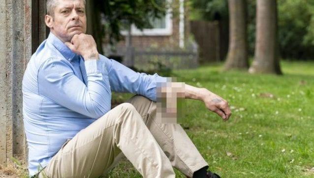 """Perde il pene per un'infezione, medici lo fanno ricrescere sul braccio: """"Spero lo spostino presto"""" Ecco la foto:"""